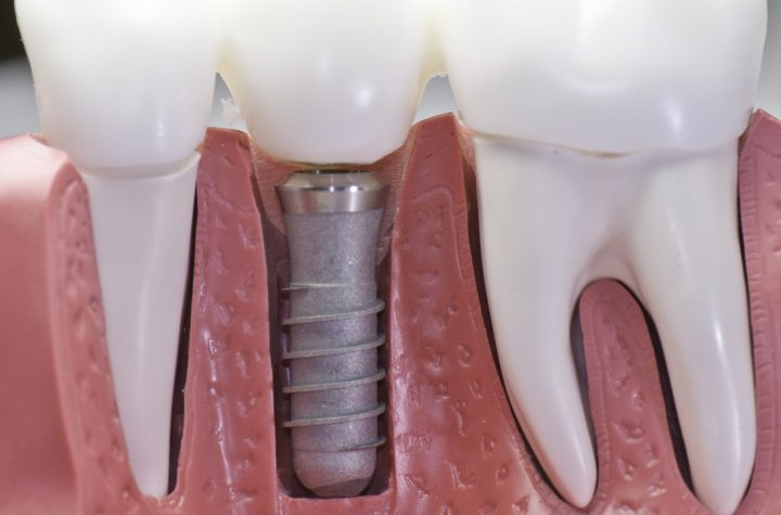 Dental Implants Are Replacing Root Canals